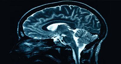دراسة: التدخين يتسبب في نسبة 80 بالمائة من جلطات المخ