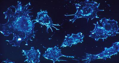 اكتشاف علمي جديد يفسر ظاهرة الأورام السرطانية