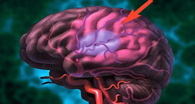 دراسة: السكتة الدماغية سببها الحرمان العاطفي في مرحلة الطفولة