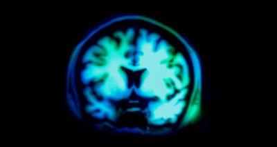 صور أشعة المخ تكشف مقدار عنصرية الشخص