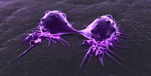 """Cancer : une nouvelle molécule pour """"affamer"""" les tumeurs"""