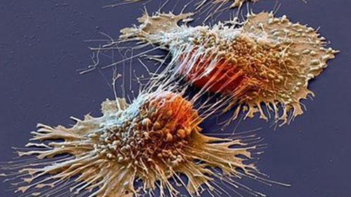 العلماء يلتقطون صورة لخلايا سرطانية باستخدام مجهر اليكتروني