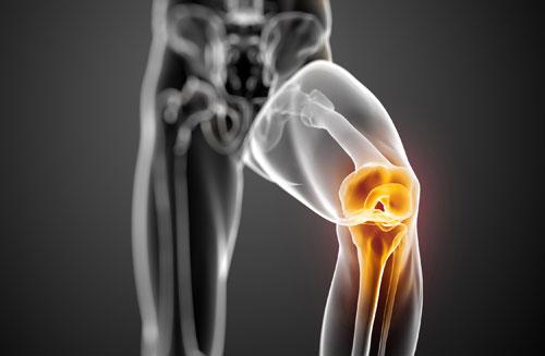 العلاج بالخلايا الجذعية قد ينهي الأضرار الناجمة عن هشاشة العظام