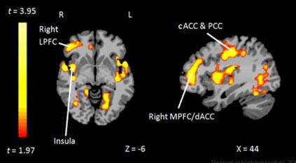 Etude: Les traumatismes d'enfance altèrent la réactivité cérébrale