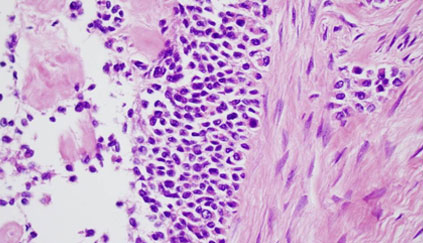 Study: Genetic Tests of Tumors Often Gives False Results
