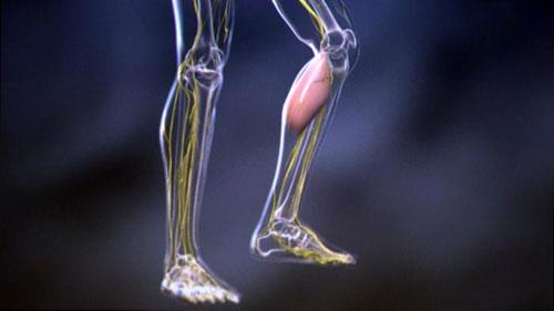 التفسير العلمي لحدوث تشنج العضلات وكيفية علاجه