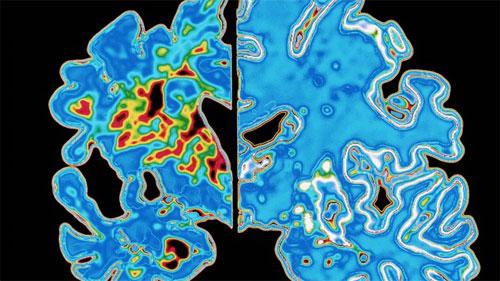 """دراسة: لعبة """"المتاهة"""" يمكنها توقع الإصابة بألزهايمر"""