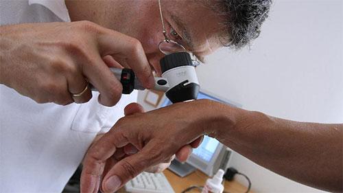 استخدام تقنيات الذكاء الاصطناعي في التعرف على سرطان الجلد