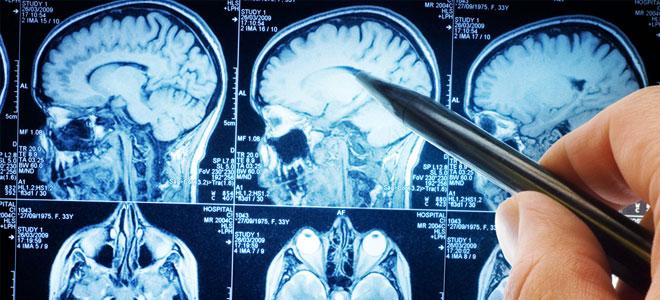 فحوصات للدماغ لدى المراهقين تنبئ عن امكانية تعاطيهم للمخدرات في المستقبل