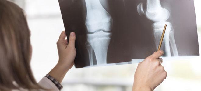 الغذاء الصحي والرياضة.. يقيان من هشاشة العظام