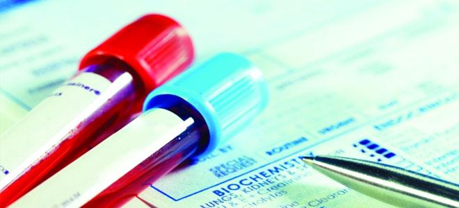 اختبار جديد للدم يحدد العلاج المناسب للاكتئاب