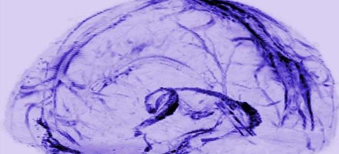 """العلماء يكتشفون """"مكب السموم"""" التي يتخلص منها الدماغ"""