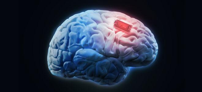 جهاز إلكتروني جديد يزرع في المخ من أجل تنشيط الذاكرة!