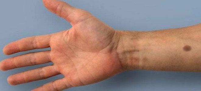 شريحة تحت الجلد تكتشف السرطان مبكراً